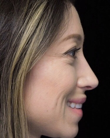 before and after photo on a left profile view of a smiling female asian patient  who underwent scarless rhinoplasty