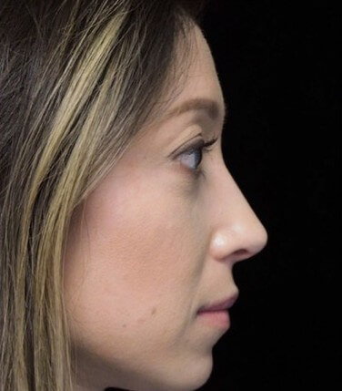 before and after photo on a left profile view of a non-smiling female asian patient  who underwent scarless rhinoplasty