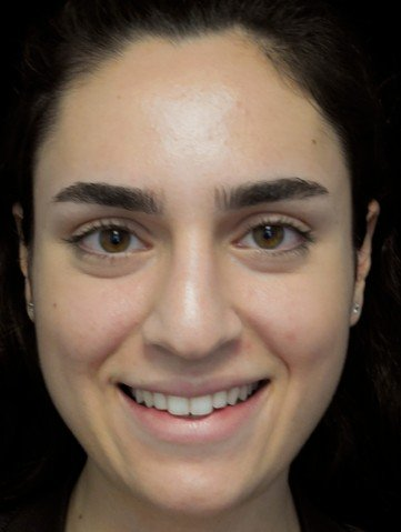 before and after photo on a frontal view of a smiling female patient with asymetric nose who underwent scarless rhinoplasty
