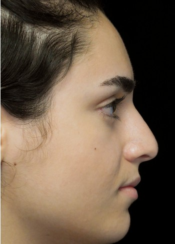 before and after photo on a left profile view of a non-smiling female patient with asymetric nose who underwent non surgical rhinoplasty