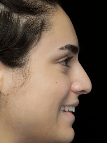 before and after photo on a left profile view of a smiling female patient with asymetric nose who underwent non surgical rhinoplasty