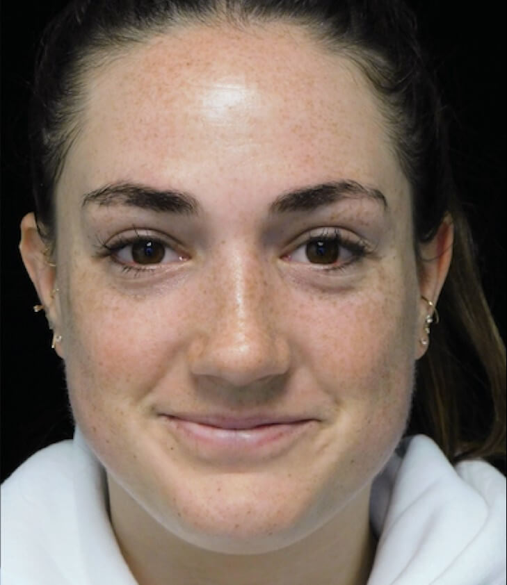 before and after frontal view photo of a smiling female patient with boxy nose who underwent scarless rhinoplasty