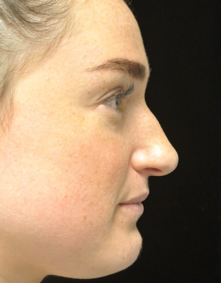 before and after photo on a left profile view of a non-smiling female patient with boxy nose who underwent scarless rhinoplasty