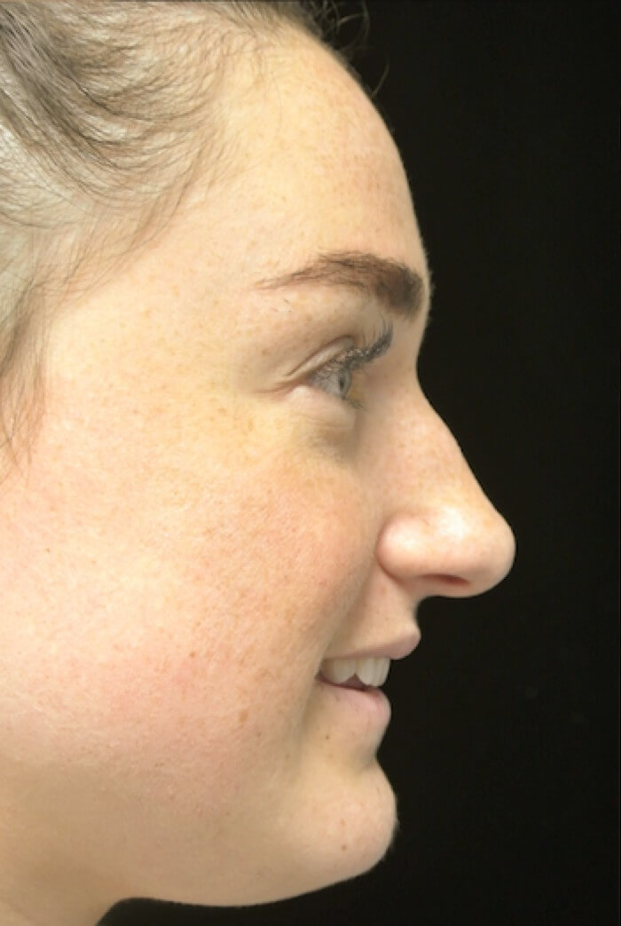before and after photo on a left provile view of a smiling female patient with boxy nose who underwent scarless rhinoplasty
