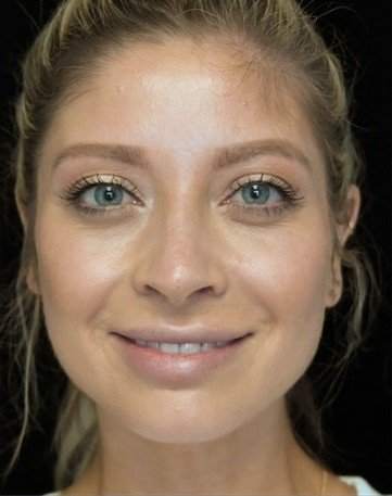 before and after photo on a frontal view of a smiling female patient with crooked nose who underwent scarless rhinoplasty