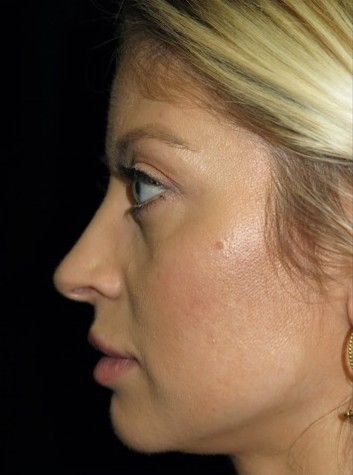 before and after photo on a right profile view of a non-smiling female patient with crooked nose who underwent non surgical rhinoplasty