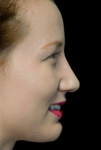 before and after photo on a left profile view of a smiling female patient with dorsal hump who underwent non surgical rhinoplasty