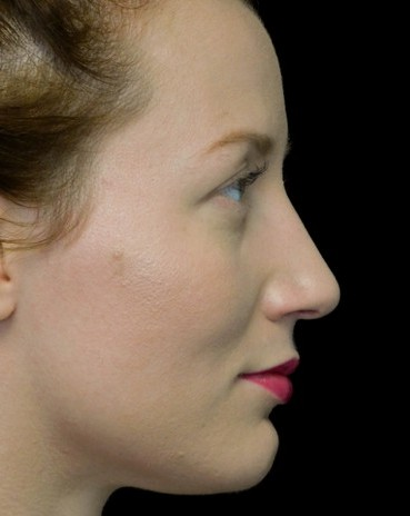 before and after photo on a left profile view of a non-smiling female patient with dorsal hump who underwent non surgical rhinoplasty