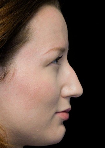 before and after photo on a left profile view of a non-smiling female patient with dorsal hump who underwent scarless rhinoplasty