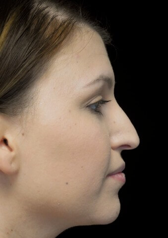 before and after photo on a left profile view of a non-smiling female patient with droopy tip nose who underwent non surgical rhinoplasty