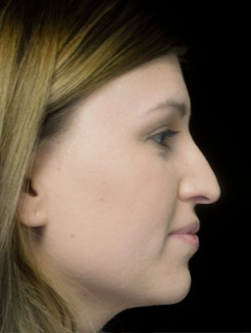 before and after photo on a left profile view of a non-smiling female patient with droopy tip nose who underwent scarless rhinoplasty