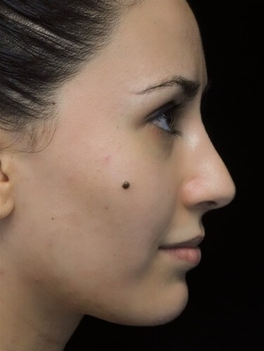 before and after photo on a left profile view of a non-smiling female european patient  who underwent scarless rhinoplasty