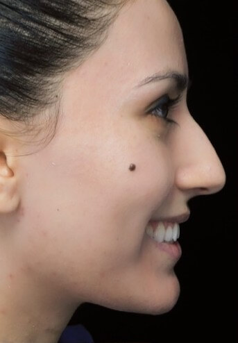 before and after photo on a left profile view of a smiling female european patient  who underwent scarless rhinoplasty