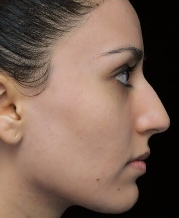 before and after photo on a left profile view of a non-smiling female russian patient  who underwent non-surgical rhinoplasty