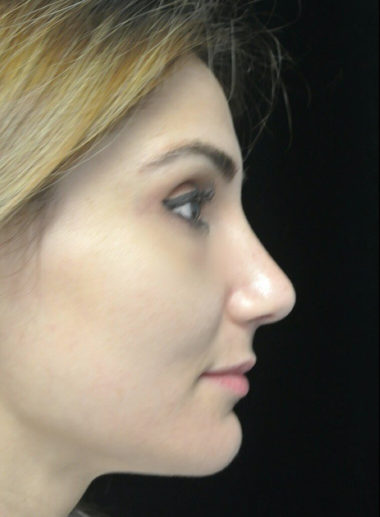 before and after photo on a left profile view of a non-smiling female patient  who underwent scarless rhinoplasty
