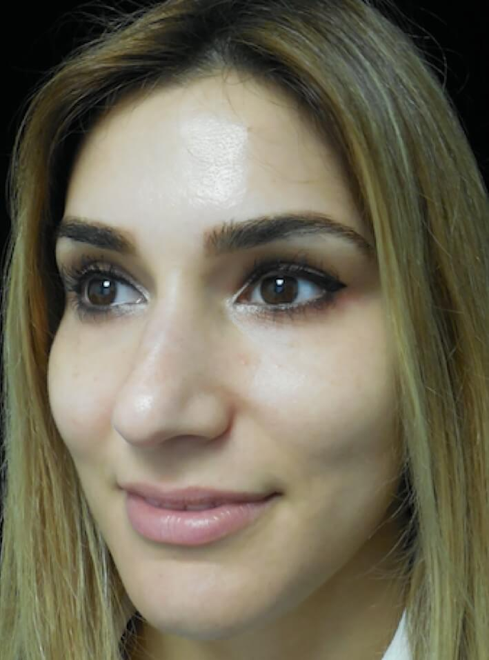 before and after photo on a right profile view of a non-smiling female patient  who underwent scarless rhinoplasty