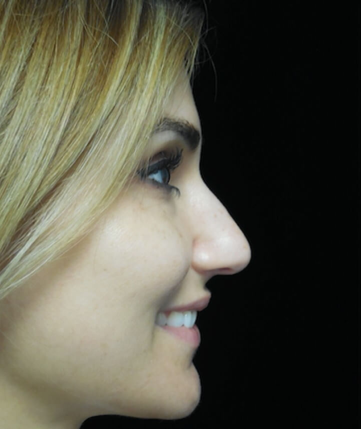 before and after photo on a left profile view of a smiling female patient  who underwent scarless rhinoplasty