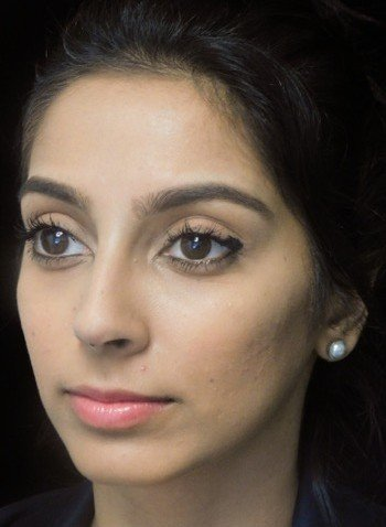 before and after photo on a right profile view of a non-smiling female south asian patient  who underwent non-surgical rhinoplasty