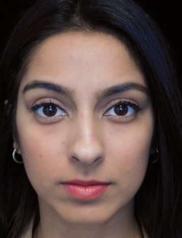 before and after photo on a frontal view of a non-smiling female south asian patient  who underwent non-surgical rhinoplasty