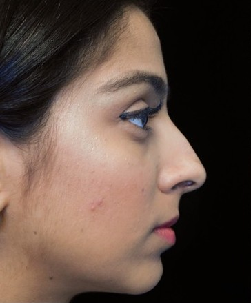 before and after photo on a left profile view of a non-smiling female south asian patient  who underwent non-surgical rhinoplasty