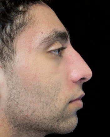 before and after photo on a left profile view of a non-smiling male patient  who underwent scarless rhinoplasty