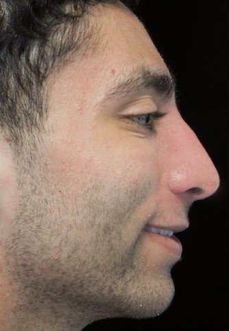 before and after photo on a left profile view of a smiling male patient  who underwent scarless rhinoplasty