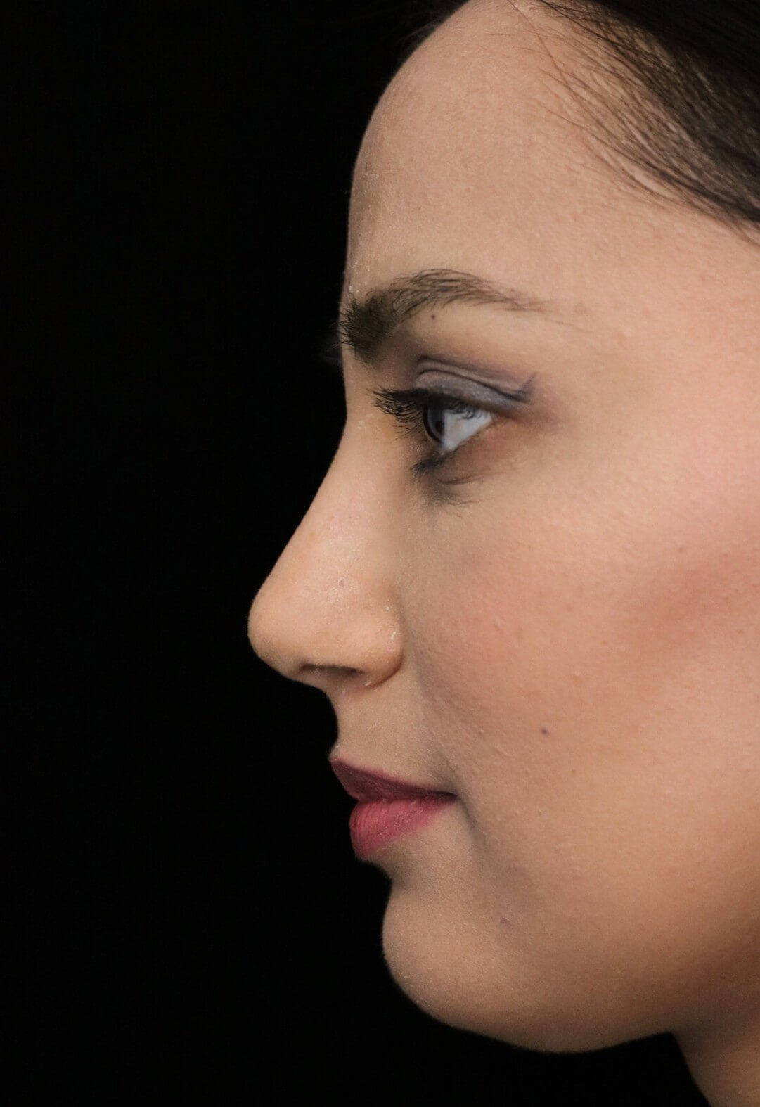 before and after photo on a right profile view of a non-smiling female middle eastern patient  who underwent non-surgical rhinoplasty