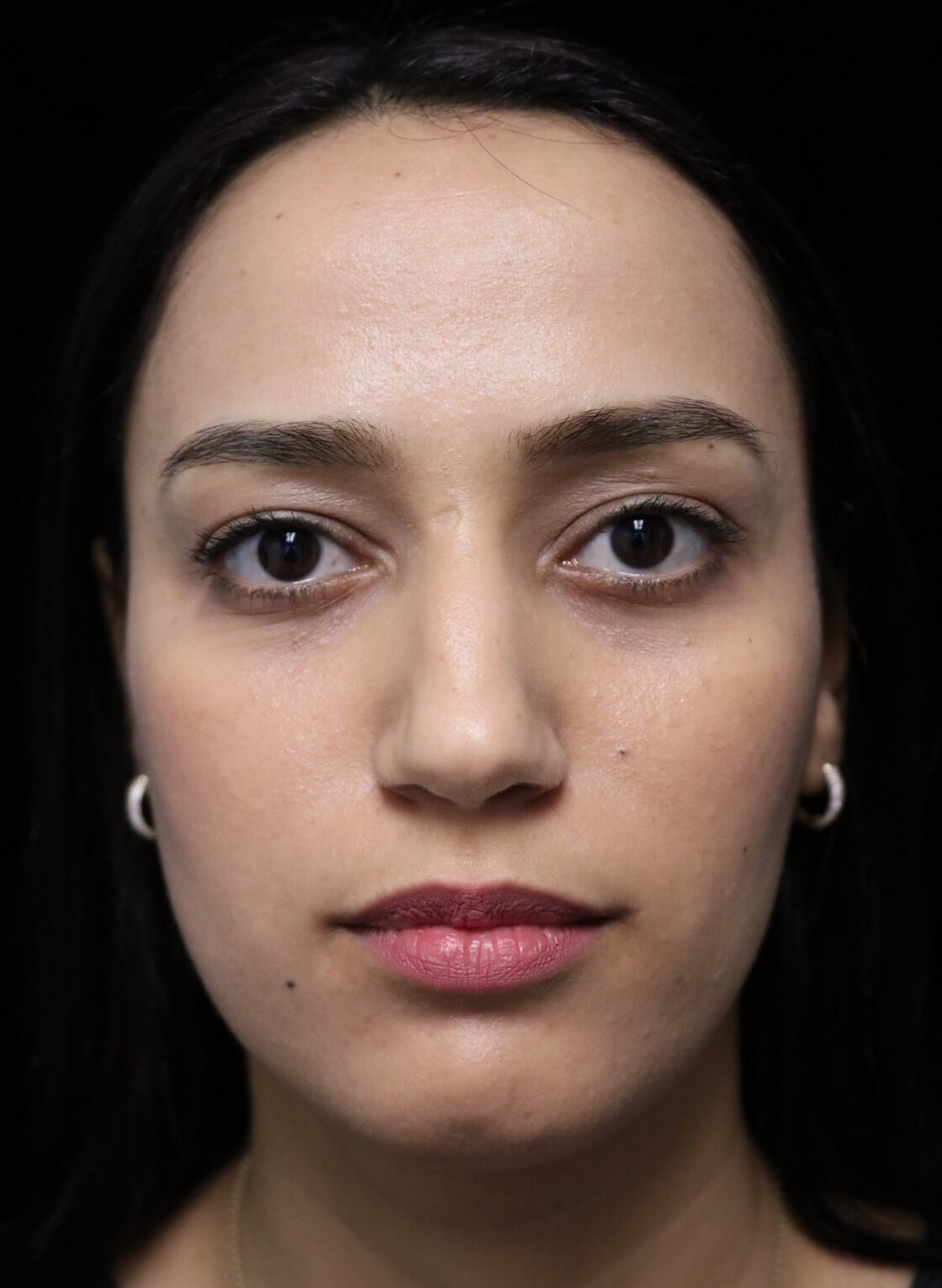 before and after photo on a frontal view of a non-smiling female middle eastern patient  who underwent non-surgical rhinoplasty