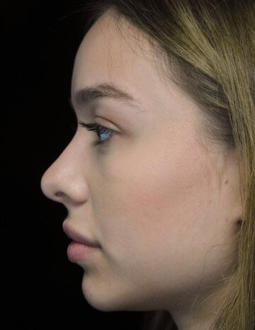 before and after photo on a right profile view of a non-smiling female model patient  who underwent non-surgical rhinoplasty