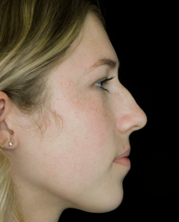 before and after photo on a left profile view of a non-smiling female russian patient  who underwent scarless rhinoplasty