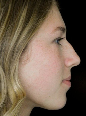 before and after photo on a left profile view of a non-smiling female russian patient  who underwent non surgical rhinoplasty