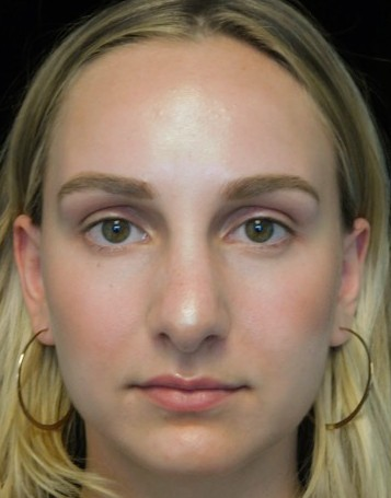 before and after photo on a frontal view of a non-smiling female patient with wide nasal bones who underwent scarless rhinoplasty