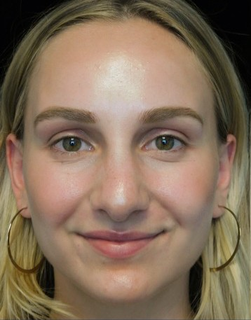 before and after photo on a frontal view of a smiling female patient with wide nasal bones who underwent scarless rhinoplasty