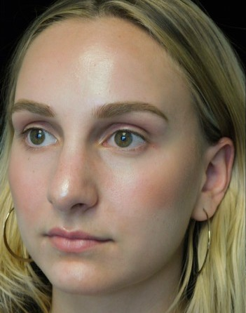 before and after photo on a right profile view of a non-smiling female patient with wide nasal bones who underwent scarless rhinoplasty