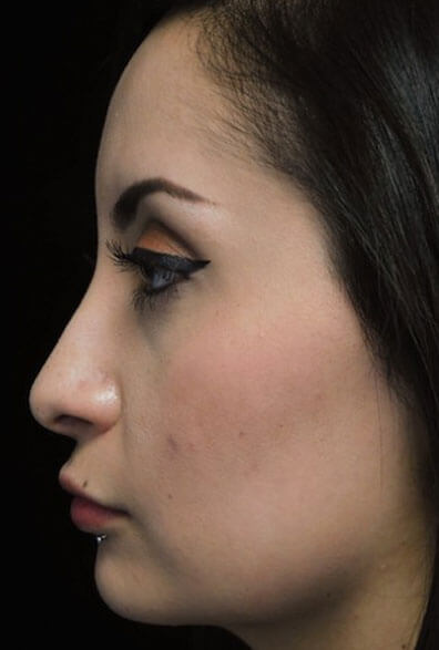 before and after shot of a patient who underwent a non surgical rhinoplasty