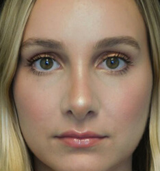before and after shot of a patient who underwent a bulbous tip rhinoplasty