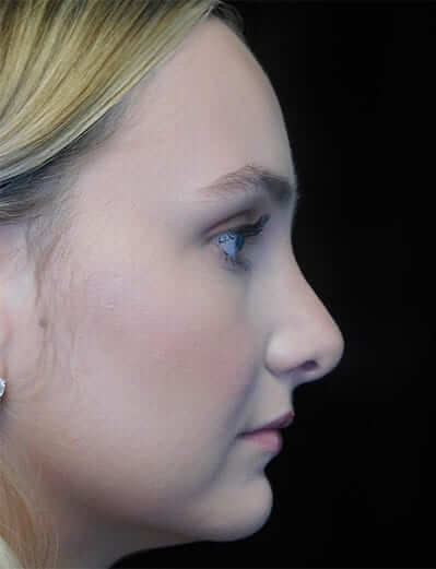 pre plastic surgery photo of a patient on a left profile view with a non-smiling face