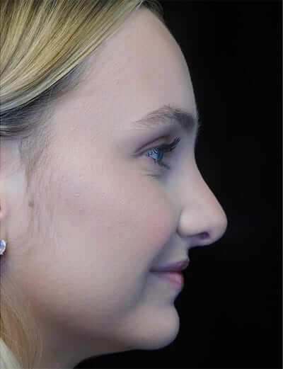 pre plastic surgery photo of a patient on a left profile view with a smiling face