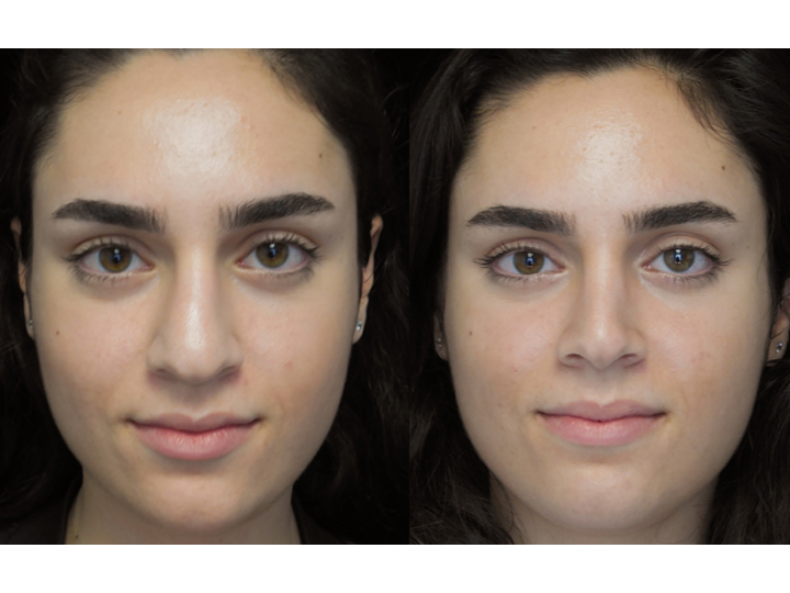 Rhinoplasty patient of a top plastic surgeon in california