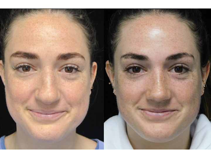 Female patient of the best rhinoplasty surgeon in los angeles