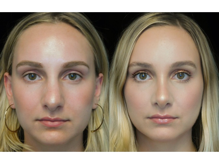 Female patient of the best rhinoplasty surgeon in california