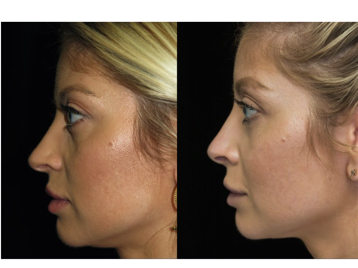 Illustration of a female patient with droopy nose tip who underwent a closed rhinoplasty tip refinement