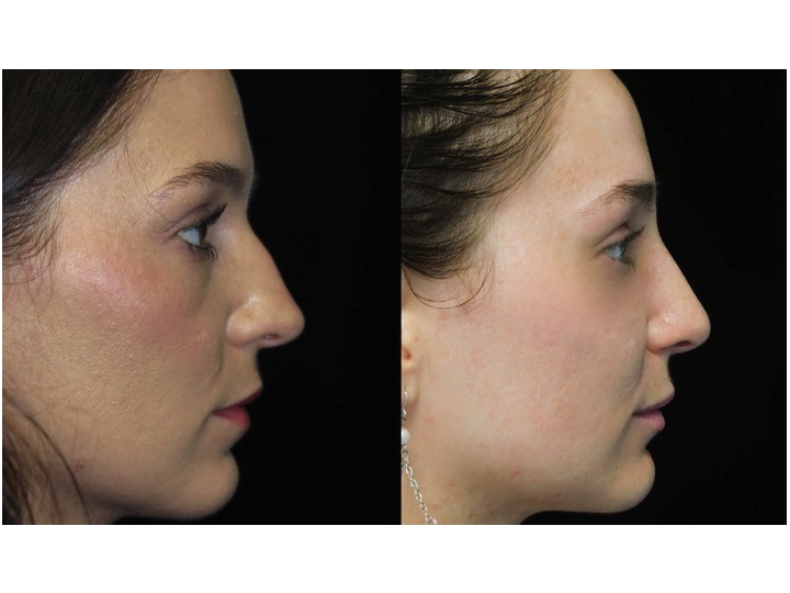 Nose job before and after of a female with small dorsal hump