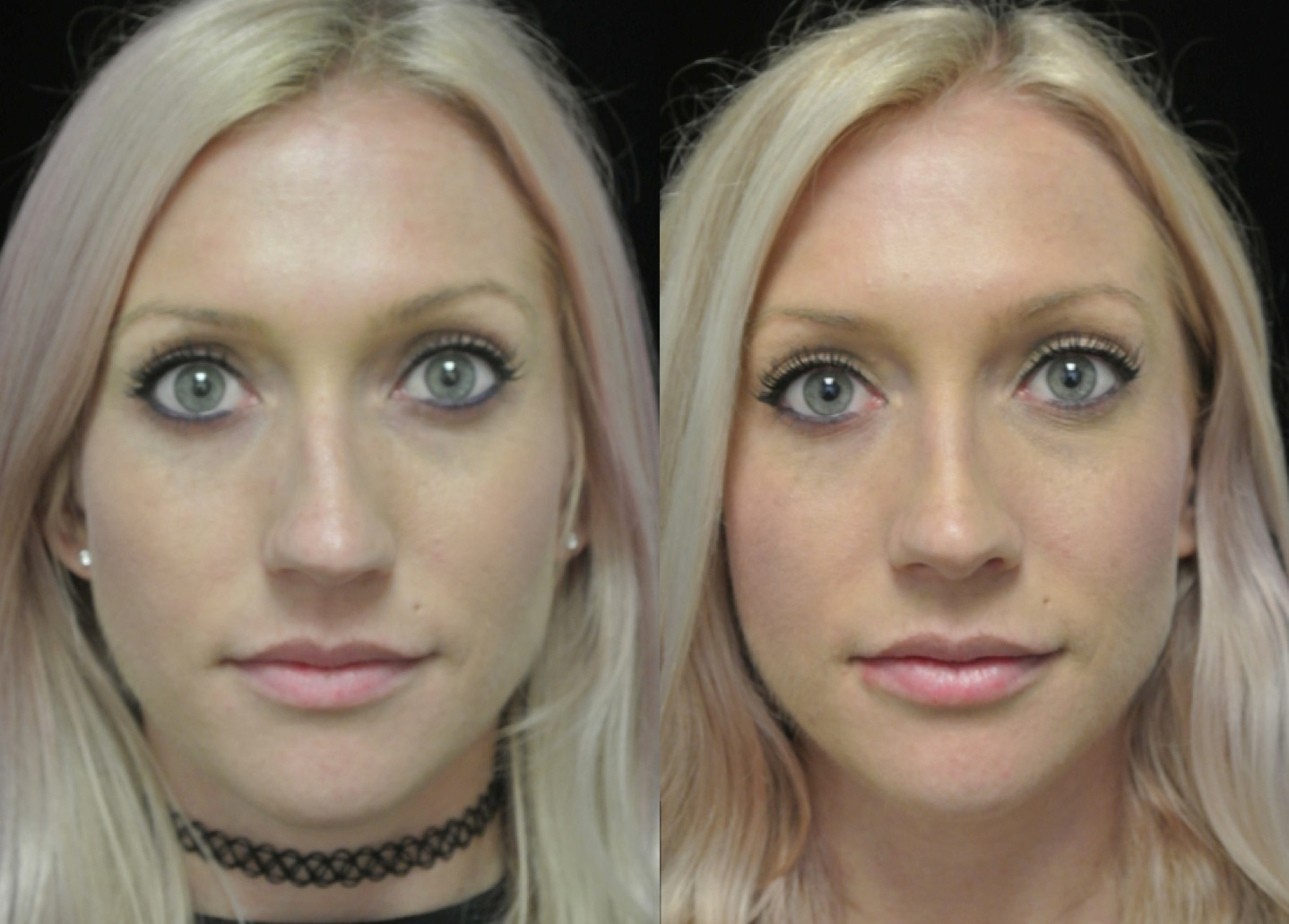 before and after photo of a female patient who underwent a lip enhancement