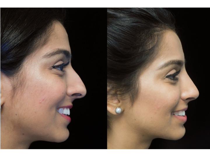 Illustration of a woman who underwent closed rhinoplasty tip refinement