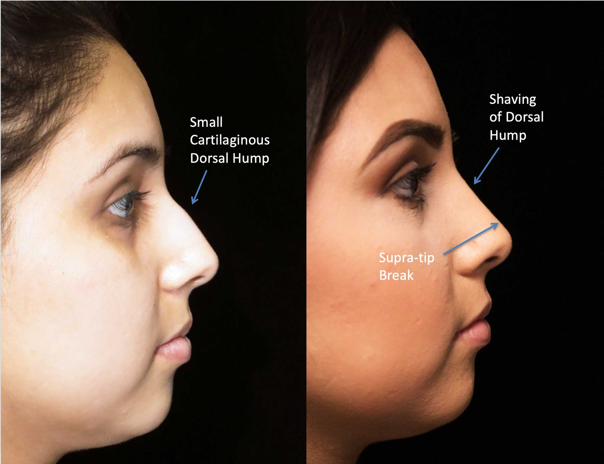 nose job before and after illustration of a woman with wide nasal bones