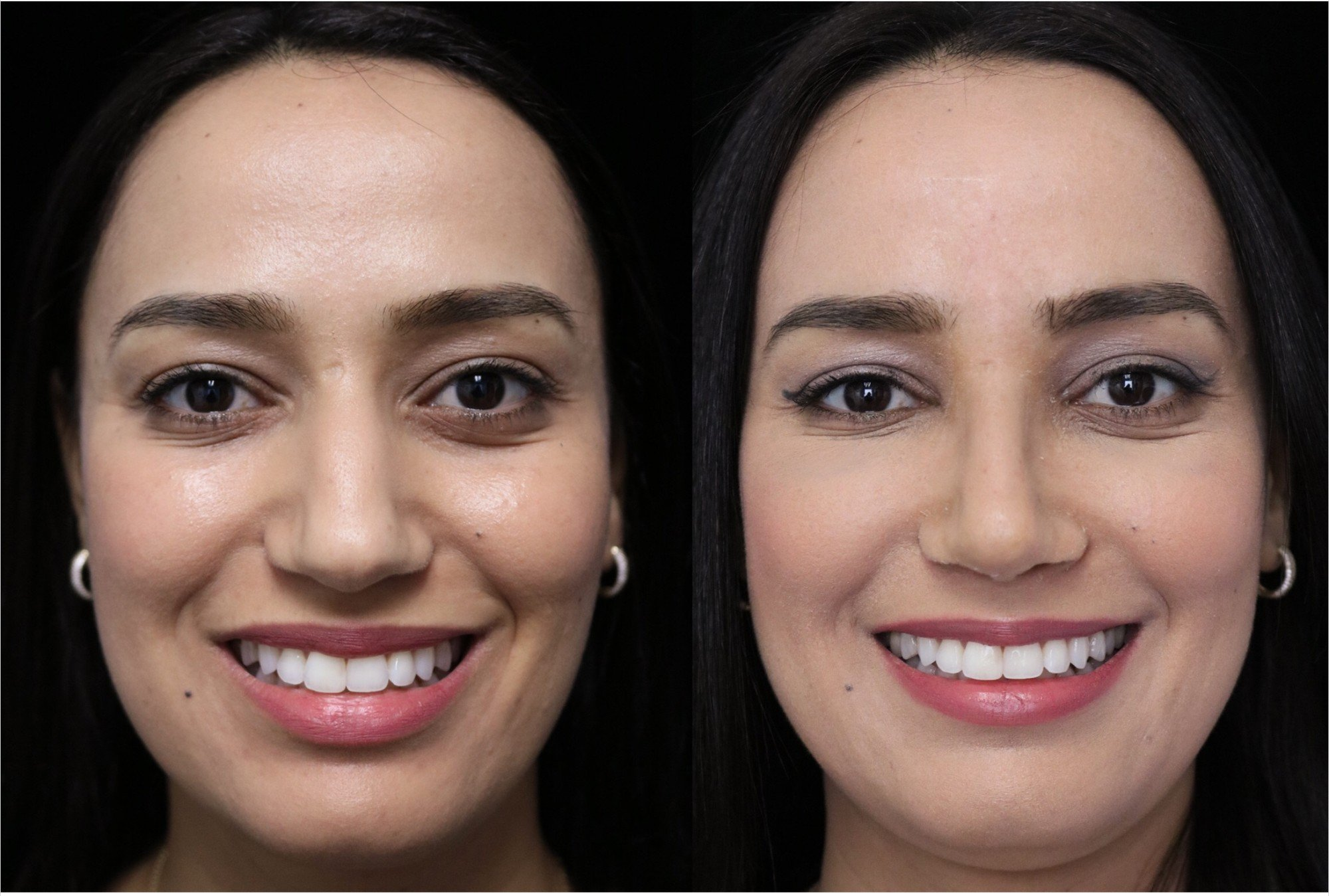 closed rhinoplasty before and after illustration of a woman with small dorsal hump
