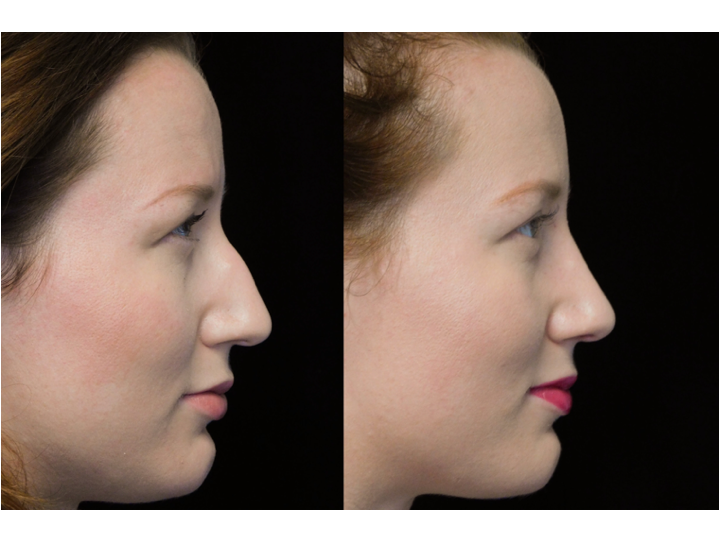 before and after photo of a young woman with a bulbous tip nose who underwent bulbous tip reduction