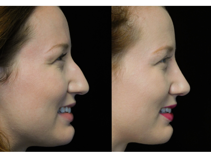 a young man with long bulbous nose who underwent a bulbous nasal tip rhinoplasty
