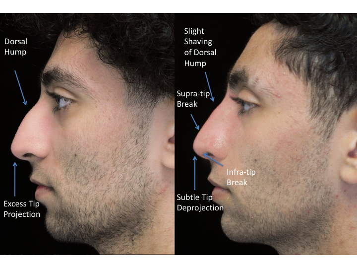 Before and after photo of a man who underwent bulbous nasal tip rhinoplasty